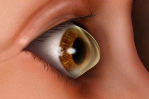 Accent Eye Care Causes-Keratoconus