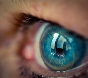 Accent Eye Care Contact Lens Technology