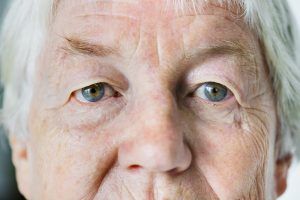 Accent Eye Care portrait-of-white-elderly-woman-closeup-on-eyes-PAP84NJ