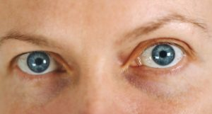 Accent Eye Care Eyes