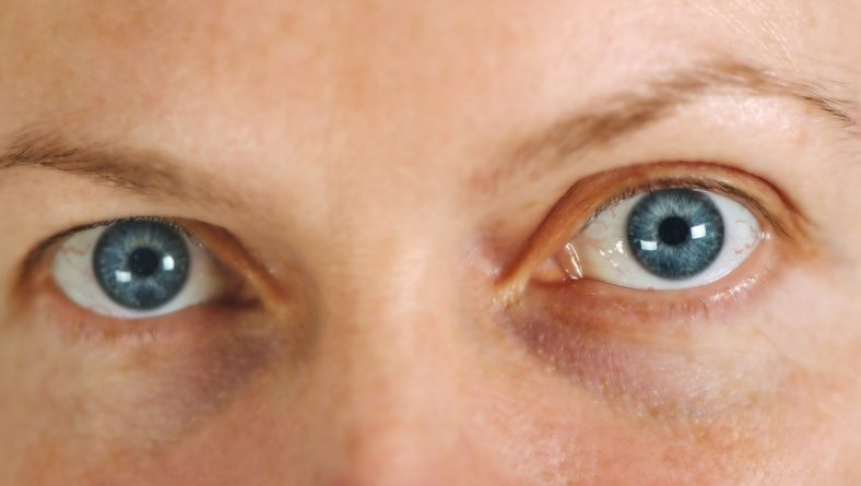Accent Eye Care What Are The Most Common Eye Problems Among People?