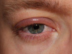 Accent Eye Care 1024px-Blepharitis
