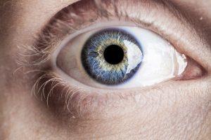 Accent Eye Care Blue Eye Macro 1