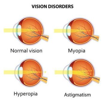 Accent Eye Care Myopia