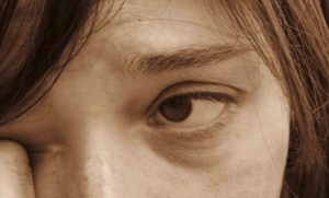 Accent Eye Care eyes-feel_dry