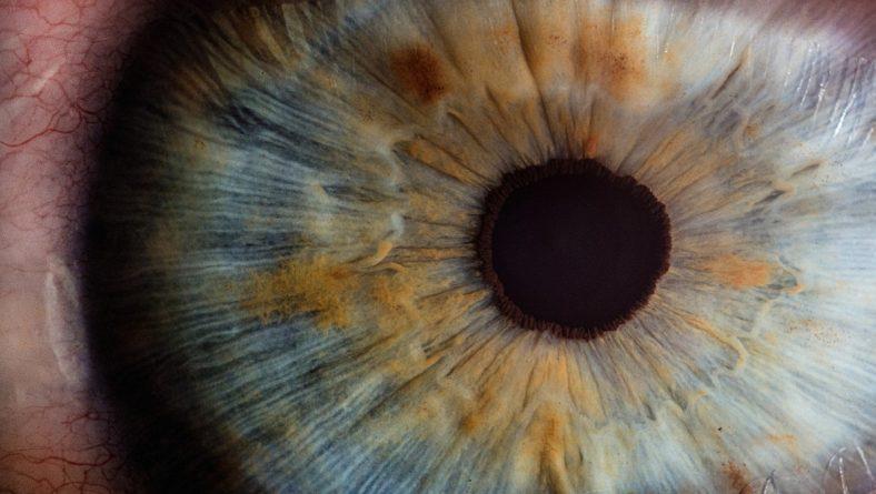 Accent Eye Care PHOENIX EYE TREATMENT