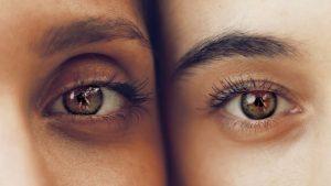 Accent Eye Care eyes-eyelashes-eyelid-eyebrows