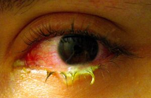 Accent Eye Care Swollen_eye_with_conjunctivitis