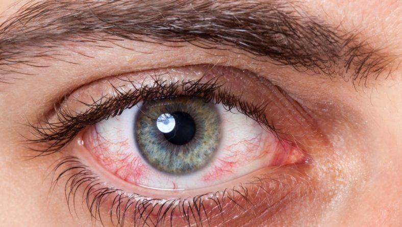 Accent Eye Care Conjunctivitis | BelAir