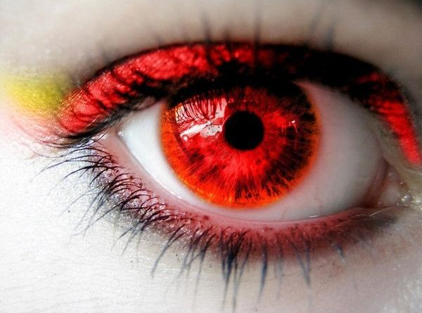 Accent Eye Care Eye Allergies: Causes, Symptoms, and Treatment