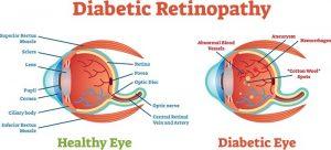 Accent Eye Care Diabetic Retinopathy_1
