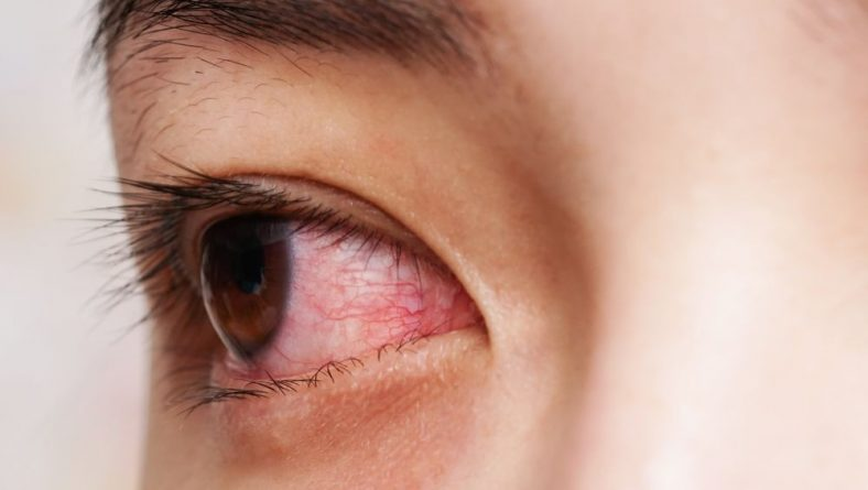 Accent Eye Care The trouble with dry eyes