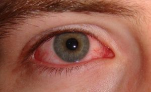 Accent Eye Care eye infection