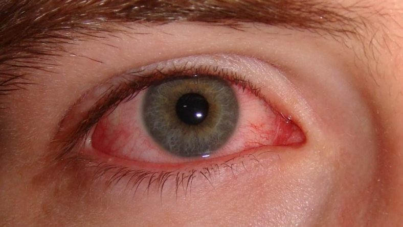 Accent Eye Care Disposable contact lenses and eye infections