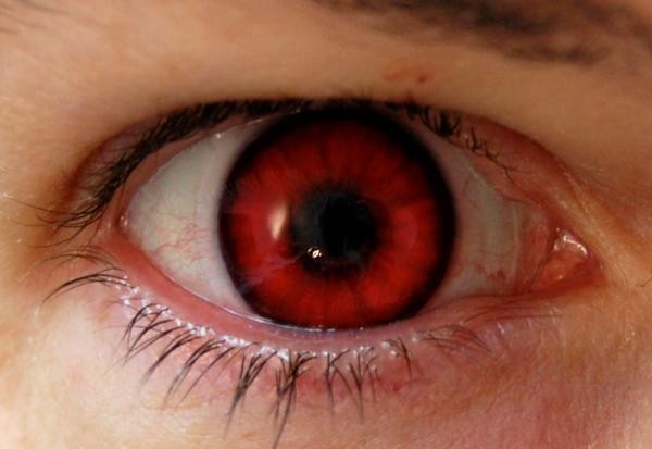 Accent Eye Care Red Eye on Photos