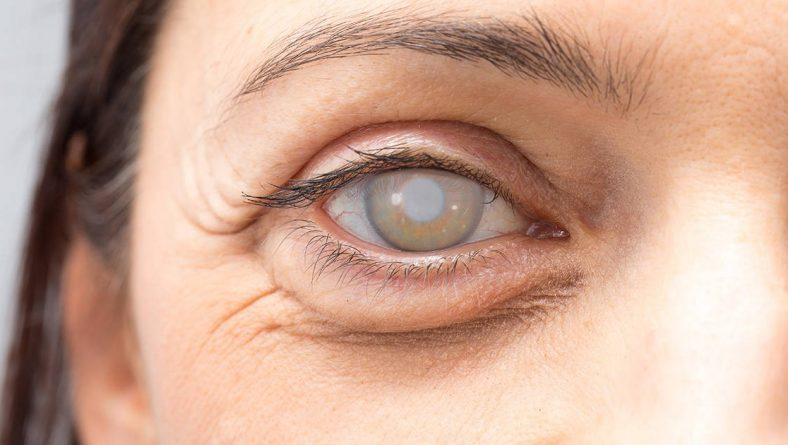 Accent Eye Care What are Cataracts?