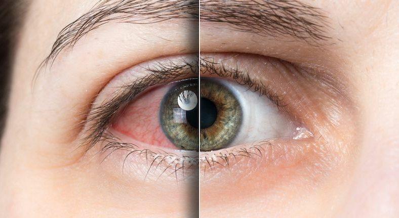 Accent Eye Care Dry Eye