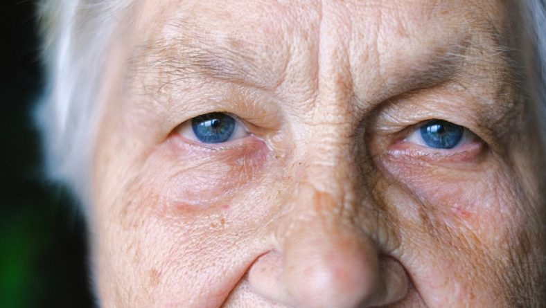 Accent Eye Care Age-related Macular Degeneration (AMD)