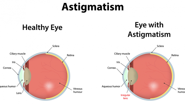 Accent Eye Care Astigmatism