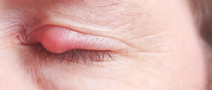 Accent Eye Care Inflammation of the Eyelids